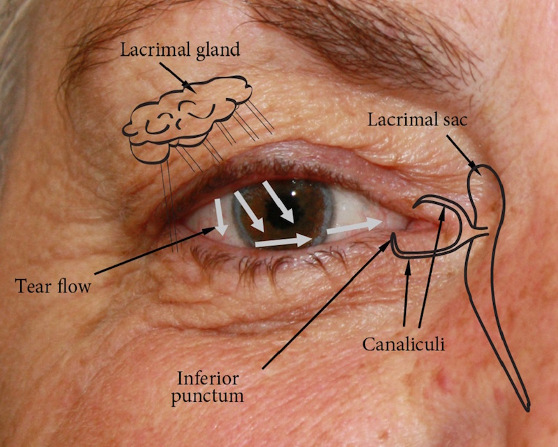Socket anatomy - New Zealand Prosthetic Eye Service