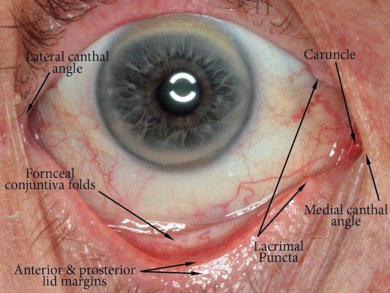 Socket Anatomy New Zealand Prosthetic Eye Service
