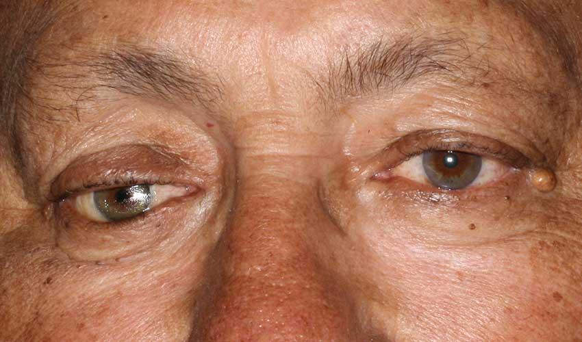 Lower eyelid laxity