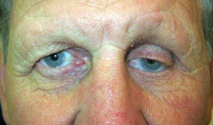 Upper eyelid ptosis
